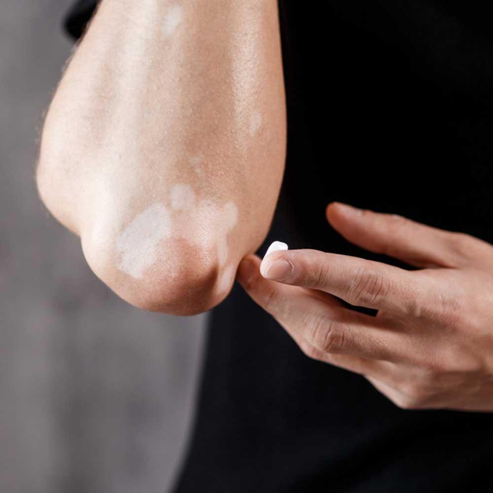 vitiligo_skincare
